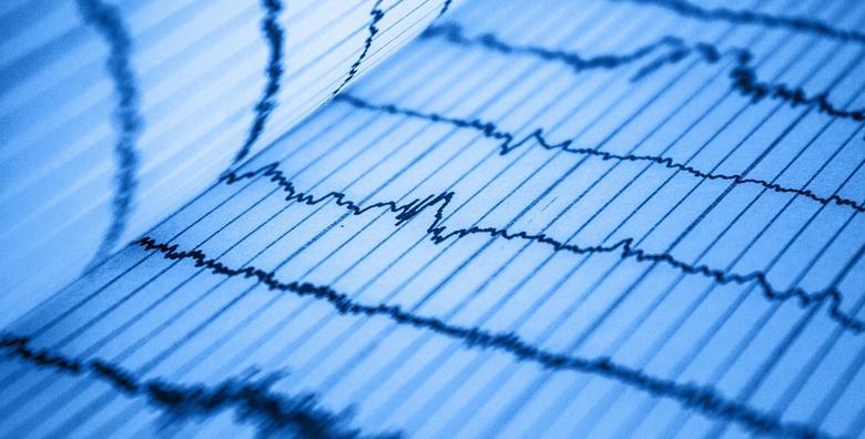 Kompletna kardiološka obrada - ergometrija, UZV i EKG za 990 kn!