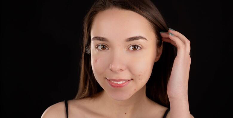 MICRONEEDLING - SCARS OFF - vratite sjaj i osvježite kožu uz poznatu nekiruršku metodu i efikasno uklonite ožiljke od akni uz uključene serume za 249 kn!
