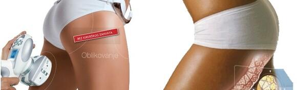 Osigurajte vitko tijelo i nježnu kožu uz 5 tretmana LPG vakumske endermološke masaže i 2 lipo body wrappinga u salonu Body Creator za 990 kn!