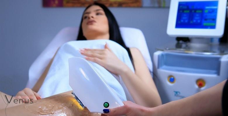 MEGA POPUST: 78% - LASERSKO UKLANJANJE DLAČICA Trajno glatka koža uz diodni laser, trenutno najjači na tržištu! 1 tretman cijelih nogu i bikini zone za 199 kn! (Medicinsko estetski centar Venus)