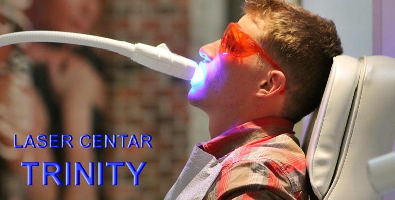Lasersko izbjeljivanje zubi bez štetnog UV zračenja za 250 kn!