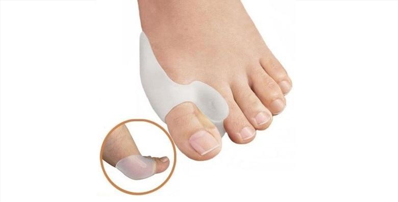 POPUST: 58% - Riješite se čukljeva! Par anatomskih štitnika za palčeve za samo 45 kn! (Ortomed Shop)