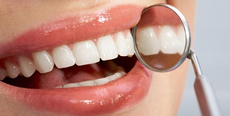 POPUST: 63% - IZBJELJIVANJE ZUBI Opalescence boost tehnologijom - do 3 nijanse svjetliji zubi uz trajnost do čak 3 godine za 749 kn! (Dental studio Marić)