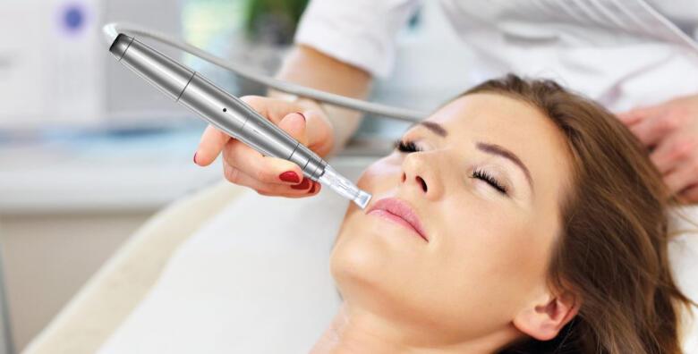 Microneedling - uklonite bore i ožiljke uz nekirušku metodu pomlađivanja lica za 499 kn!