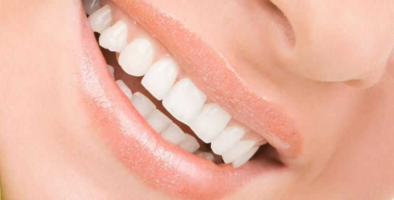 Čišćenje zubnog kamenca i poliranje zubi uz pregled - podarite zubima sjaj i njegu kakvu ste oduvijek željeli za 99 kn!