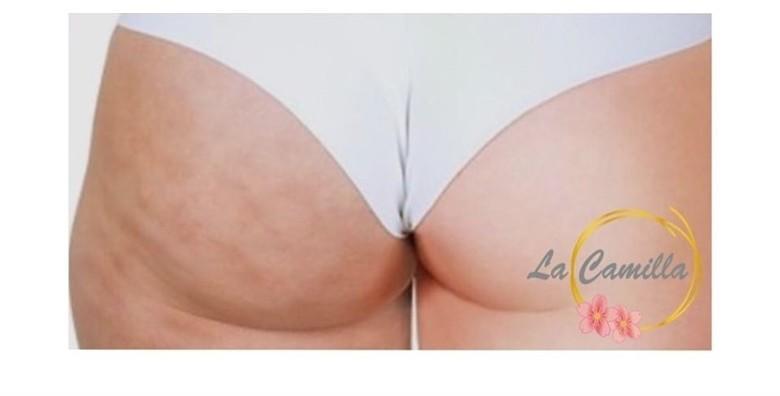 POPUST: 50% - Riješi se tvrdokornog celulita na nogama i stražnjici uz 3 anticelulitne masaže u trajanju 30 minuta u La Camilla Centru za 179 kn! (La Camilla Centar)