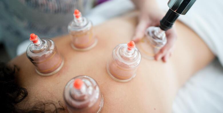 Cupping terapija s masažom leđa u trajanju 30 minuta za samo 89 kn!
