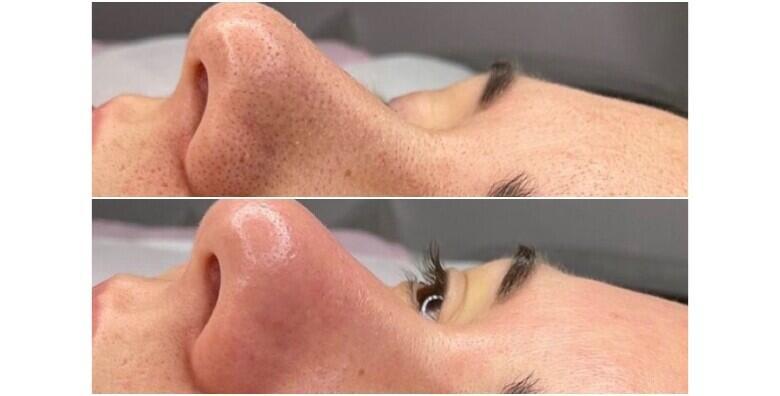 Ultrazvučno čišćenje lica uz piling, masku, kremu i masažu lica u Aura beauty salonu za 150 kn!