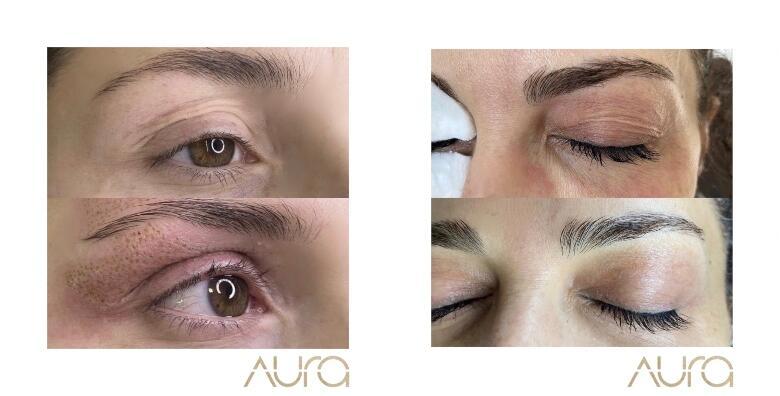 Riješite se problema spuštenih gornjih ili donjih očnih kapaka revolucionarnom tehnikom pomlađivanja Fibroblast u salonu Aura beauty za 599 kn!