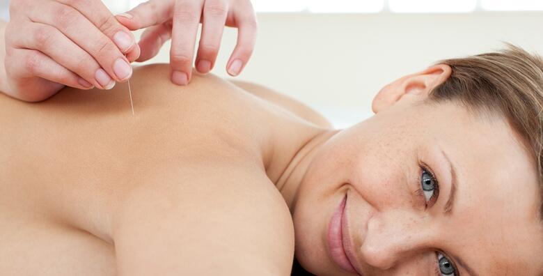 Pet ušnih akupunktura ili pet terapija tretmana BIMED uređajem uz akupunkturu od 399 kn!