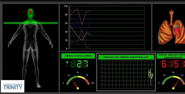 Analiza - kompjuterska magnetno - kvantna za 149kn